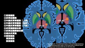 視床と脳画像